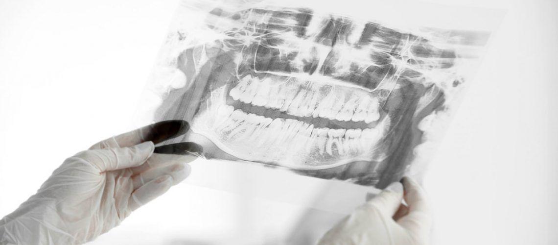 Digital-X-Ray