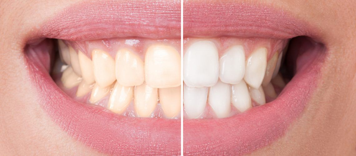 Start-Pure-teeth-whitening